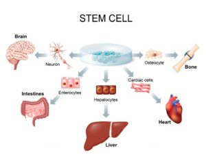 Stem Cell Therapy Safe