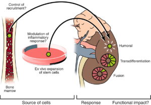 Stem Cell Therapy for Kidney Regeneration