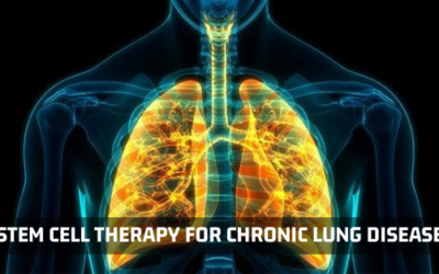 Is Chronic Lung Disease Curable With Stem Cell Therapy?