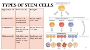 Types of Stem Cell in Stem Cell Therapy