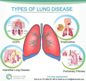 Chronic Lung Disease