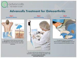 Advancells Treatment for Osteoarthritis