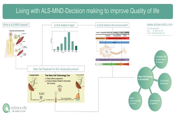 Stem Cell Therapy for MND
