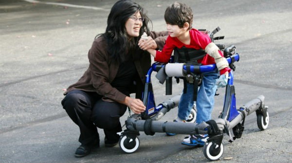 Stem cell therapy has potential to cure cerebral palsy