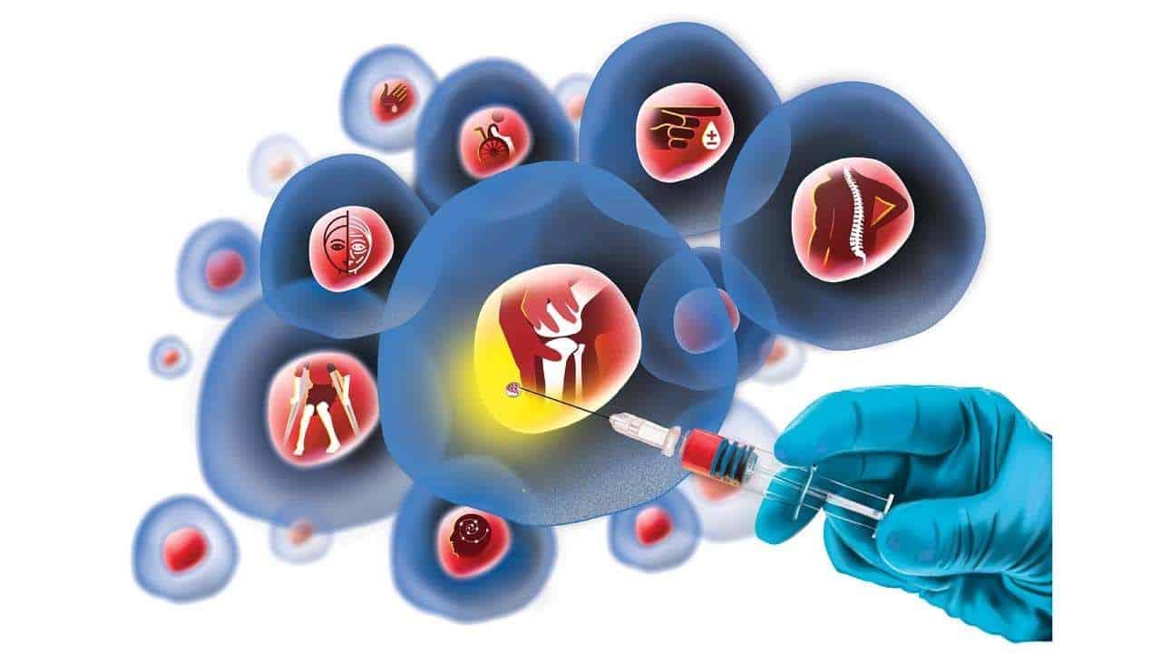 Advancells-Stem Cell Therapy in Delhi