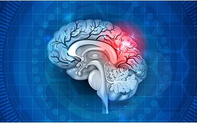 Stem Cell Therapy for Stroke and Dementia