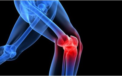 Stem Cell Therapy for Knees: Hopeful Treatment or Hoax?   Advancells